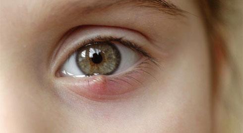 Nổi mụn ở mí mắt trên do đâu?