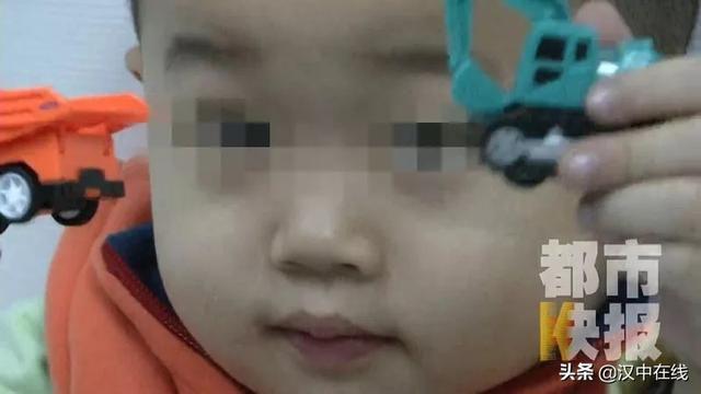 Cậu bé 3 tuổi đột nhiên bị mù mắt, nguyên nhân chỉ từ một cơn cảm lạnh-1
