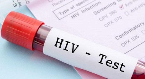 Xét nghiệm HIV âm tính là gì?
