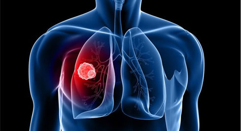 Ung thư phổi nên ăn gì và kiêng gì?