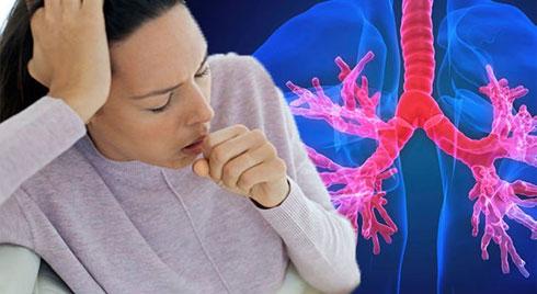 Cùng với ho, còn triệu chứng nào cảnh báo ung thư phổi?