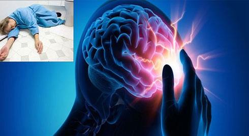 5 di chứng tai biến mạch máu não thường gặp nhất