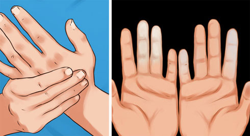 Cẩn thận với căn bệnh thường gặp phải khi trời lạnh khiến ngón tay và ngón chân của bạn đổi màu trắng xanh