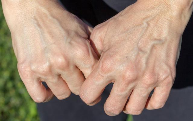 Có 3 triệu chứng này xuất hiện trên bàn tay chứng tỏ gan của bạn đang kêu cứu-4
