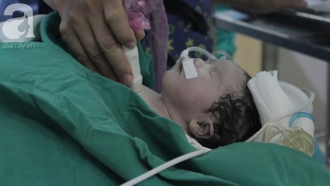 TP.HCM: Mổ khẩn cứu bé sơ sinh nguy kịch trong bụng mẹ vì động mạch phổi nằm sai vị trí-5