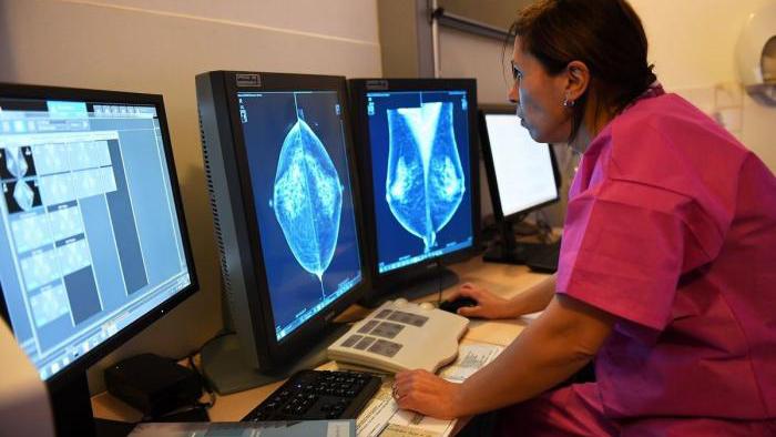 Mô hình trí tuệ nhân tạo cải thiện phát hiện ung thư vú trên nhũ ảnh