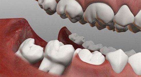 Răng khôn có tác dụng gì? Khi nào nên nhổ?