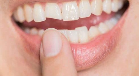 Cách phòng ngừa và xử lý khi bị mẻ răng
