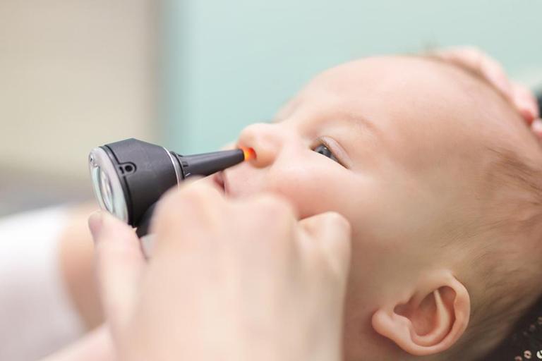 Bệnh polyp mũi ở trẻ em: Dấu hiệu và các phương pháp điều trị hiệu quả-2