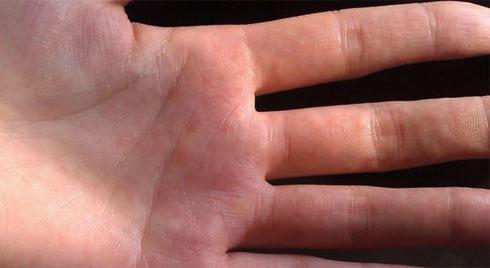 3 biểu hiện ở ngón tay cho thấy bạn đang bị xơ gan
