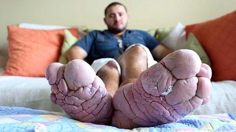 Chàng trai với căn bệnh cực hiếm, chỉ tìm thấy ở 200 người trên thế giới