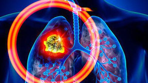 Virus corona diễn biến phức tạp và các biện pháp phòng tránh virus hiệu quả