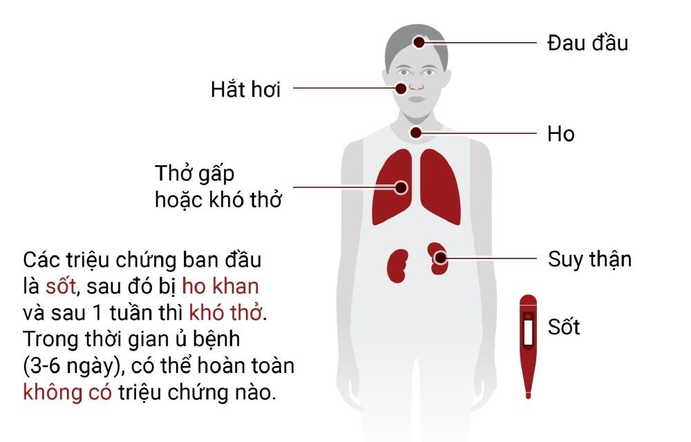 Dấu hiệu nhận biết bị viêm phổi do virus corona-1