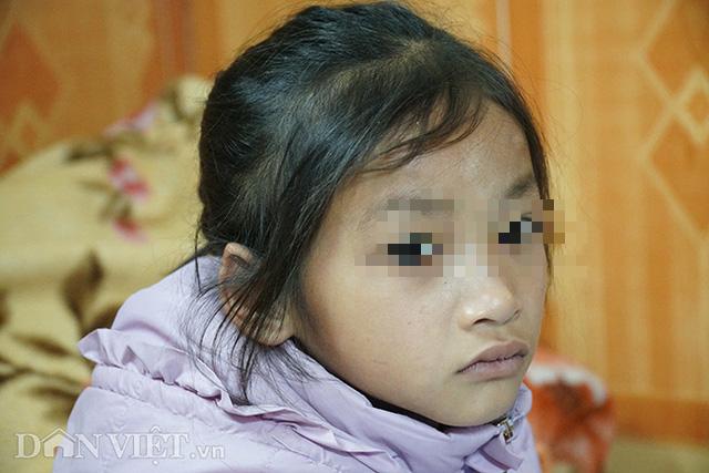 Mẹ tử nạn khi dắt con ăn xin trên cầu Thanh Trì: Bé gái 7 tuổi bây giờ ra sao?-1