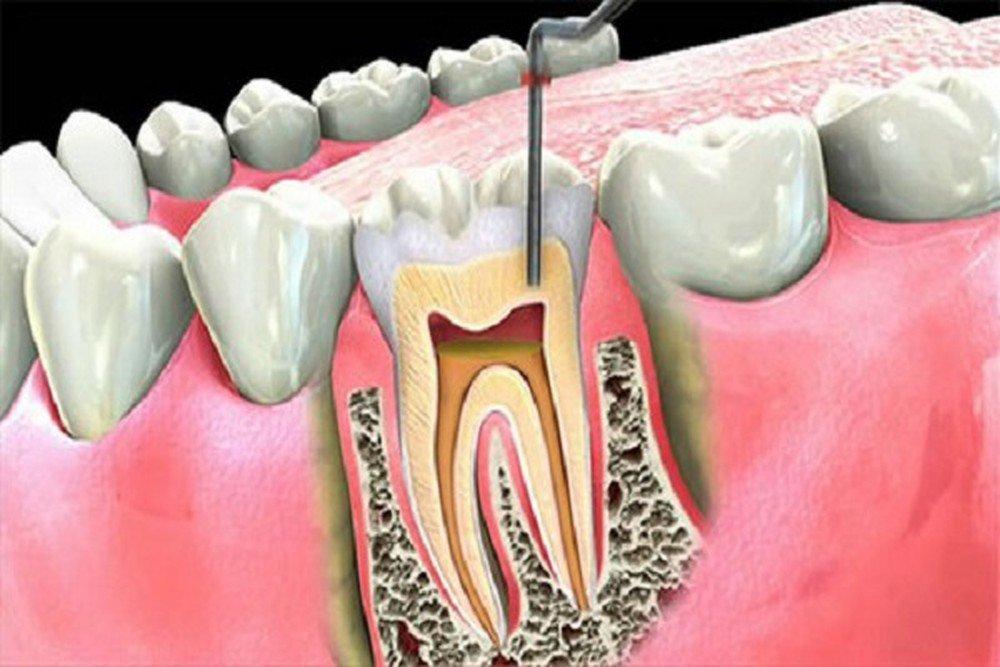 Viêm tủy răng có nguy hiểm không?-1