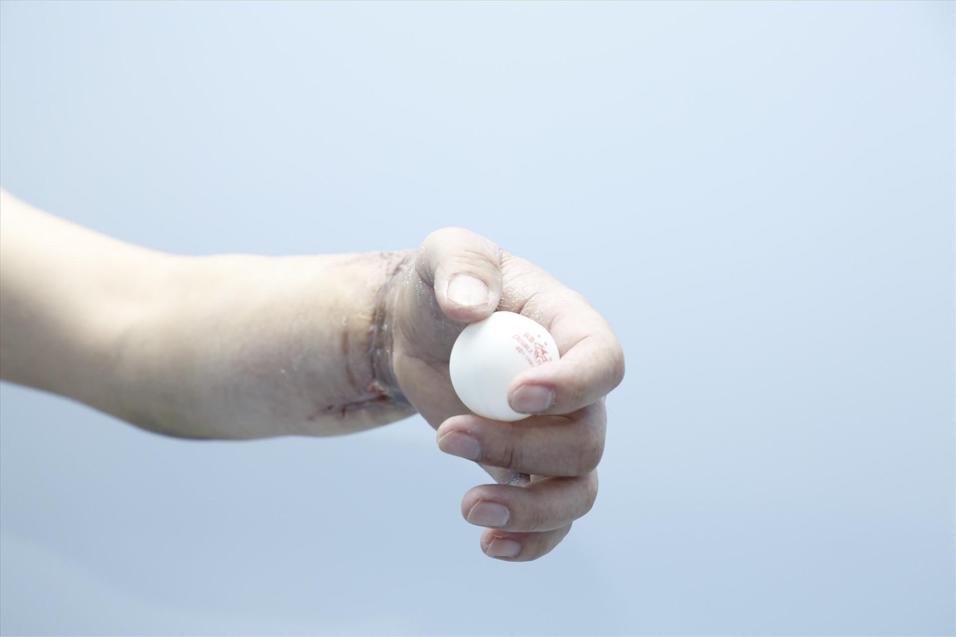 Ca ghép chi thể từ người cho sống đầu tiên trên thế giới là ở Việt Nam-8