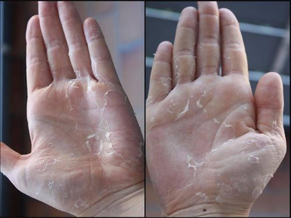 Mua nước rửa tay khô phòng bệnh, chú ý chi tiết này trên vỏ để tránh mua phải hàng giả-2