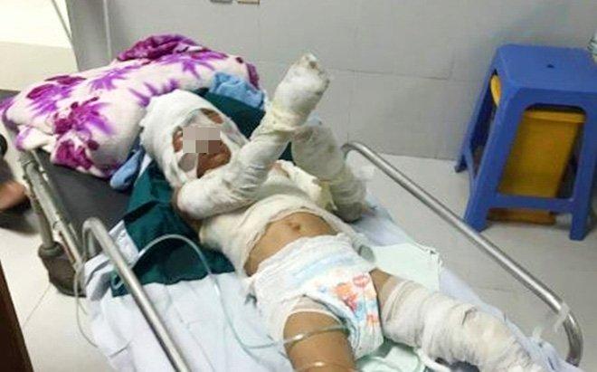 Vụ bé trai 6 tuổi bị dì ruột thiêu sống: Bà ngoại nhận tiền từ thiện rồi bất ngờ bỏ về quê, người mẹ nói gì?-3