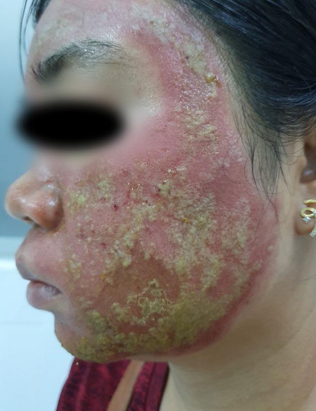 Đi lăn kim tại spa trôi nổi với giá 40 triệu đồng, người phụ nữ mặt bị mưng mủ, nhiễm trùng-1