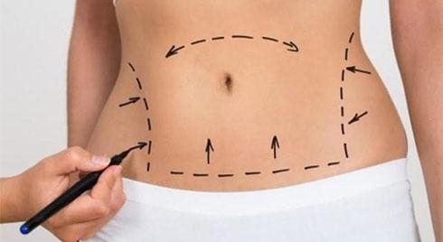 Hút mỡ không hề đơn giản từ chuẩn bị đến khi phẫu thuật và phục hồi: Chuyên gia đưa bảng lưu ý trước khi làm ai cũng nên nhớ!