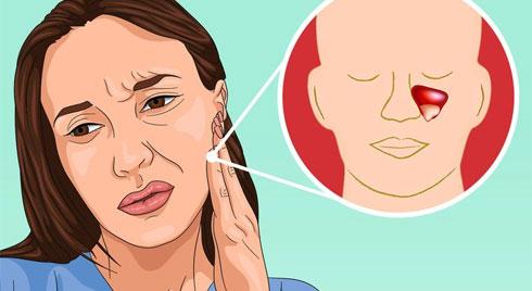 5 nguyên nhân gây đau răng mà không phải do vấn đề răng miệng
