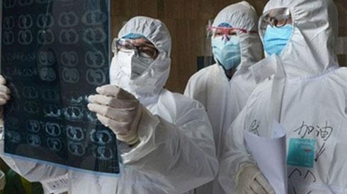 Virus corona cực kỳ 'nhạy cảm' ở những nơi có nhiệt độ cao