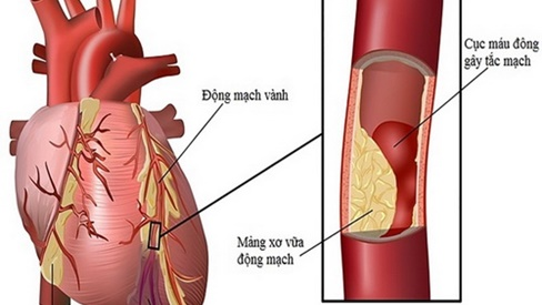 Dấu hiệu bệnh lý tim mạch ở người cao tuổi