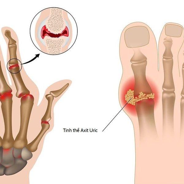 Bác sĩ phân tích nước giải ion kiềm giúp giảm biến chứng bệnh gout