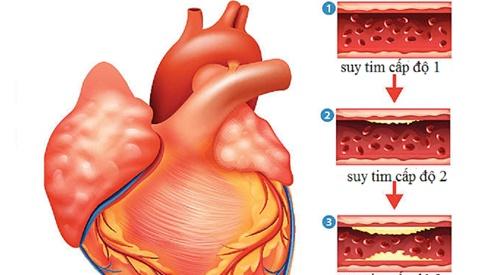 Suy tim ở người cao tuổi