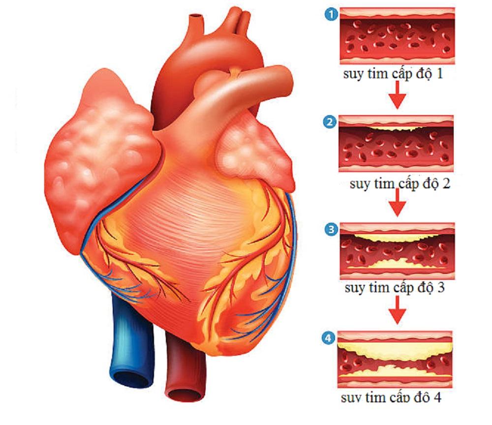 Suy tim ở người cao tuổi-1