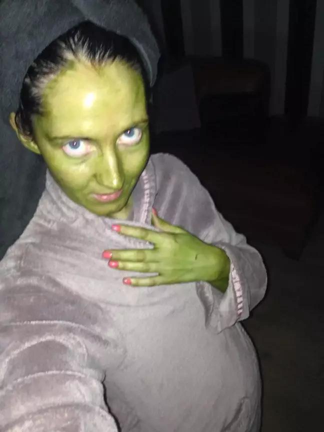 Bà mẹ xanh như tàu lá chuối vì dùng phải thuốc nhuộm da hết hạn-2
