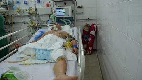 Tính mạng mong manh của người đàn ông bị ô tô đâm gãy 5 xương sườn