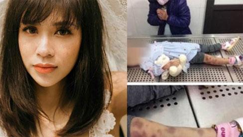 Vụ mẹ đẻ và cha dượng đánh con gái 3 tuổi đến chết: Quá khứ 'bất hảo' ít ai biết của mẹ đẻ bé gái