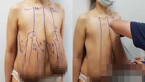Người phụ nữ Sài Gòn 31 tuổi khổ sở vì ngực dài nửa mét