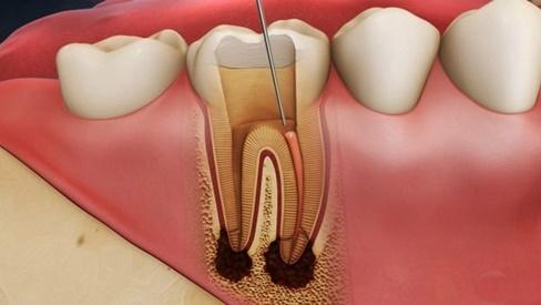 Các bước hàn ống tủy điều trị viêm tủy răng