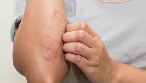 Mùa này dễ bị dị ứng da, nếu cảm thấy da ngứa ngáy, khó chịu, đừng dại dột mà làm 3 hành động tưởng chừng giúp giảm cơn ngứa
