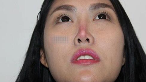 Những mỹ nhân Việt gặp biến chứng vì thẩm mỹ hỏng