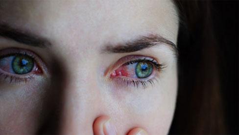 Thêm 2 dấu hiệu sớm của bệnh COVID-19 trước cả sốt, ho, khó thở