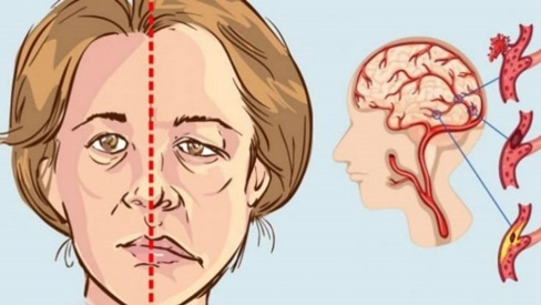 10 dấu hiệu tai biến ai cũng cần biết để xử lý kịp thời