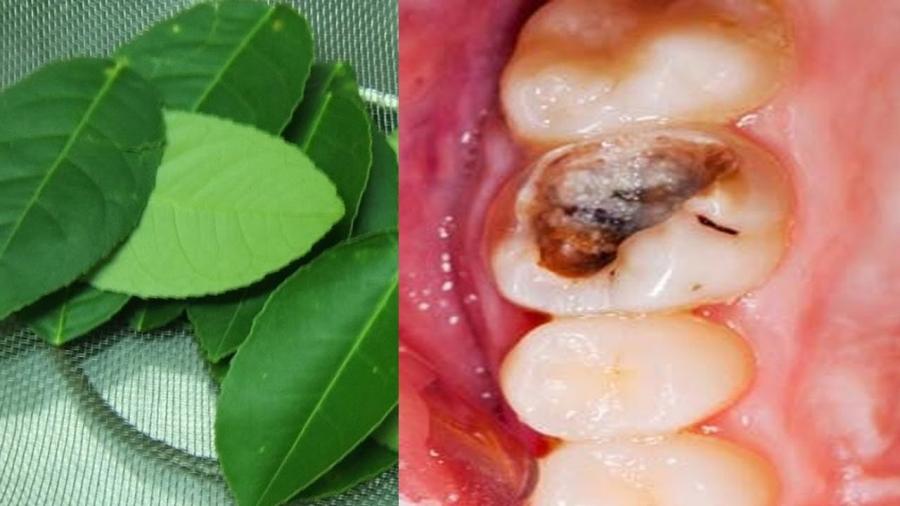 Khỏi nhanh sâu răng, viêm lợi, ê nhức, đau buốt chỉ với chén nước này-2