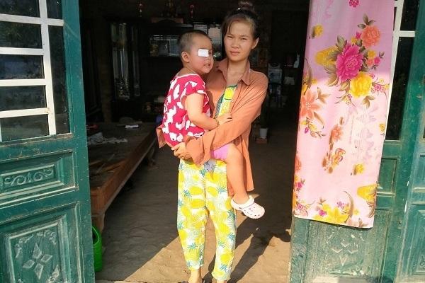 Xót xa bé gái mù lòa, tính mạng đe dọa bởi căn bệnh ung thư hiểm ác-1