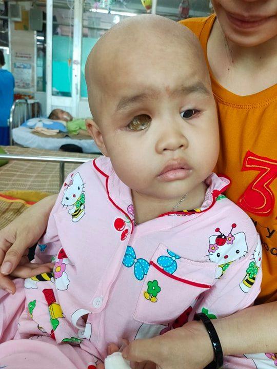 Xót xa bé gái mù lòa, tính mạng đe dọa bởi căn bệnh ung thư hiểm ác-2