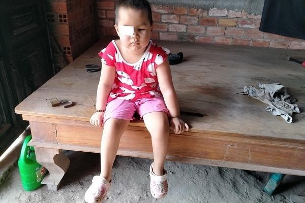 Xót xa bé gái mù lòa, tính mạng đe dọa bởi căn bệnh ung thư hiểm ác-3