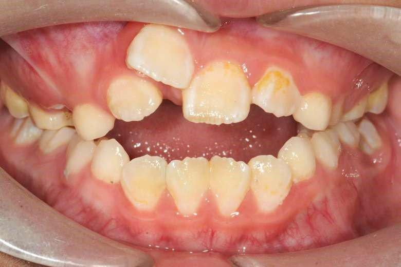 Nên chỉnh răng vẩu như thế nào?-1