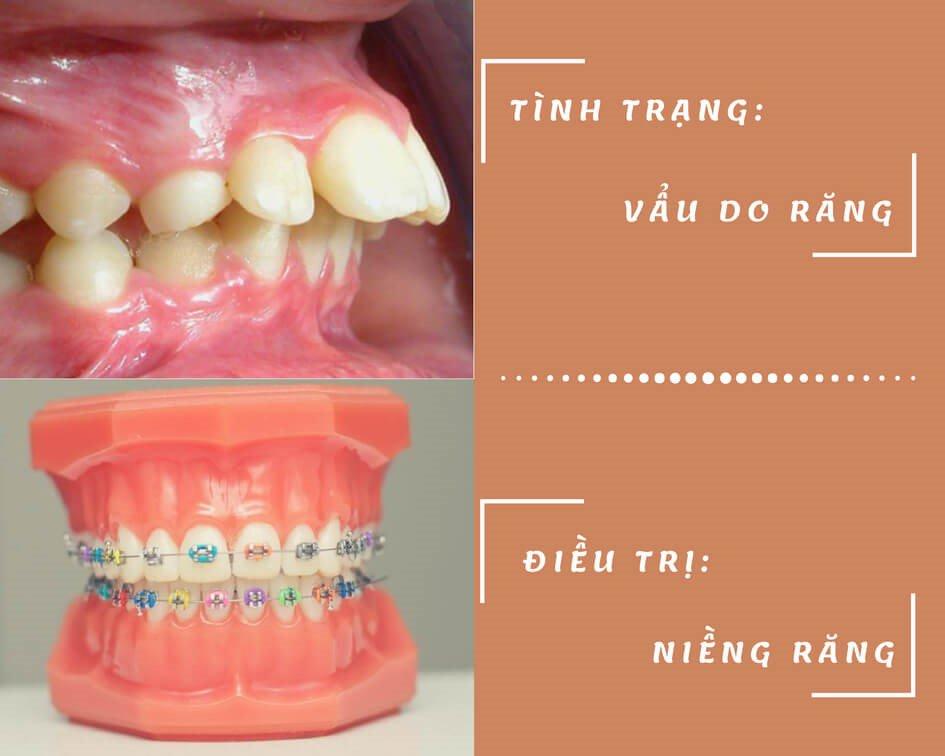 Nên chỉnh răng vẩu như thế nào?-2
