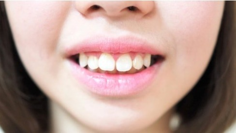 Nên chỉnh răng vẩu như thế nào?