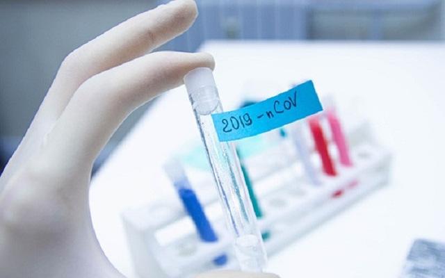 BN74 ở Phú Thọ nghi ngờ dương tính trở lại sau 13 ngày công bố khỏi bệnh-1