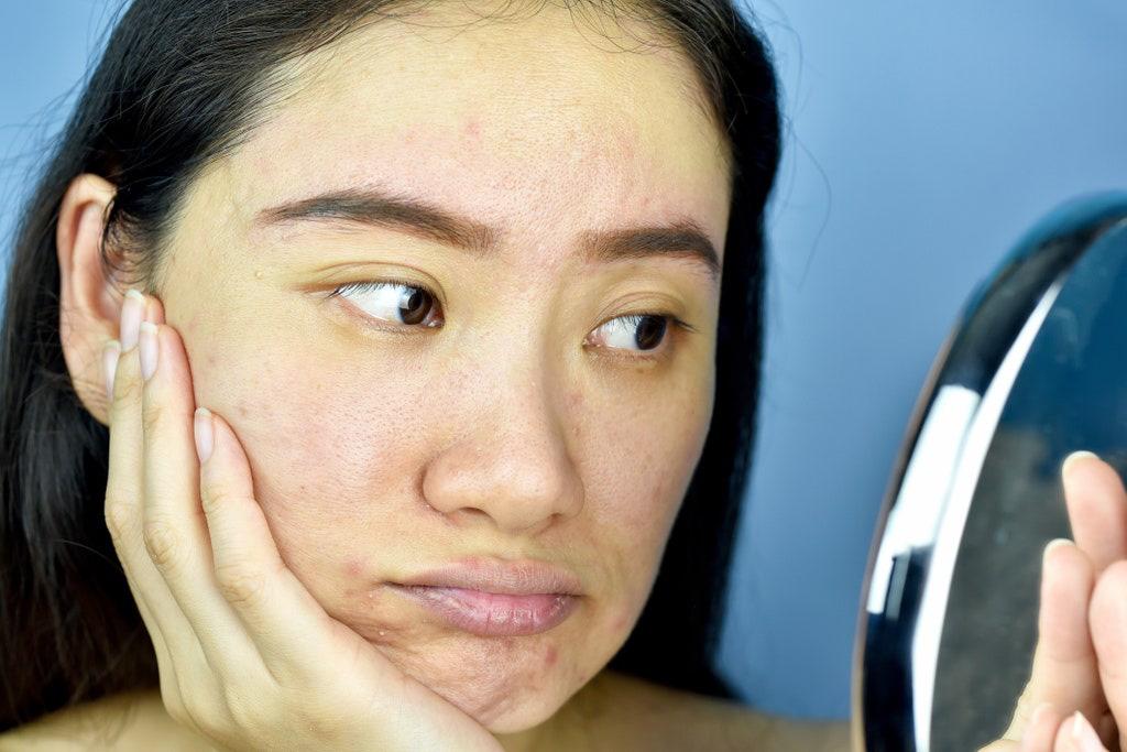 Chị em đua nhau chữa tóc rụng bằng Biotin, nhưng bác sĩ cảnh báo phải cẩn thận nếu không da sẽ bùng phát mụn-4