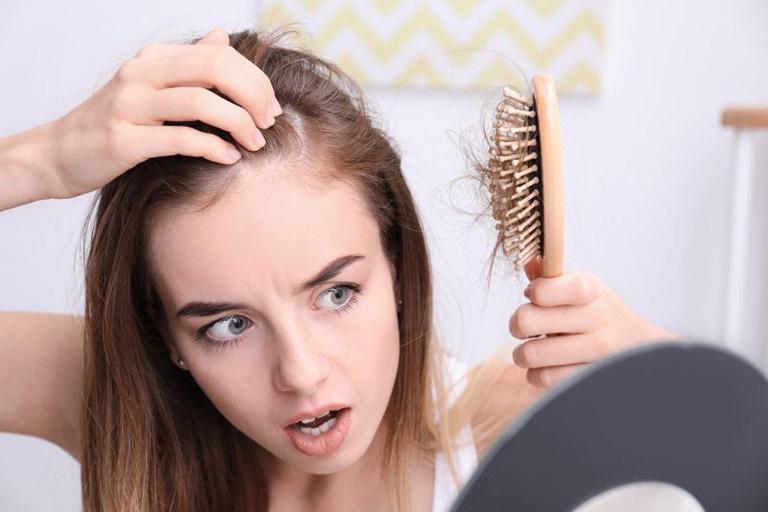 Chị em đua nhau chữa tóc rụng bằng Biotin, nhưng bác sĩ cảnh báo phải cẩn thận nếu không da sẽ bùng phát mụn-1