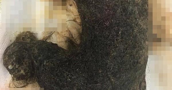 Kỳ lạ: Bé gái ở Hà Nội bứt tóc để ăn từ năm lên 2 tuổi